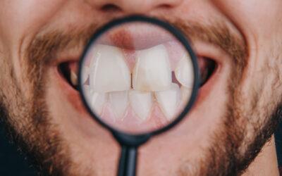 Patologie Dentali: Cause e Terapie del Bruxismo