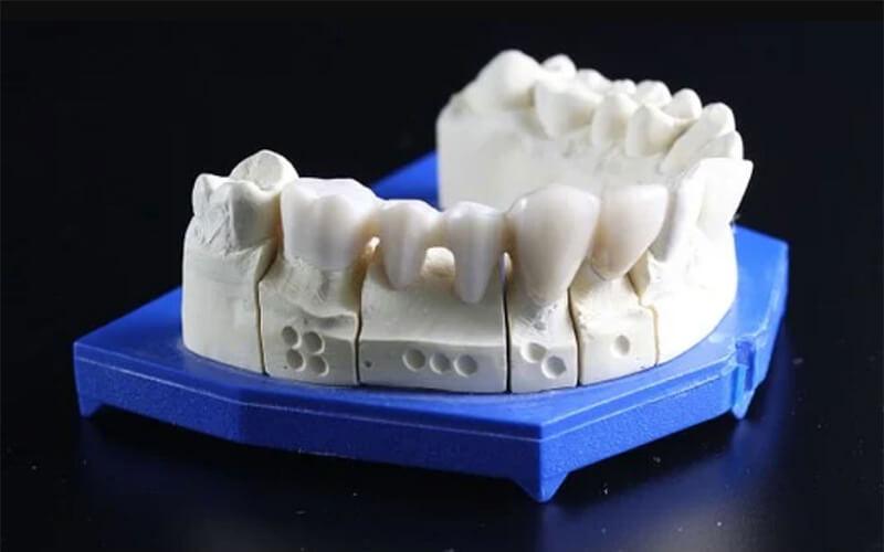 Studio Dentistico Oriolo | Dentista a Lido di Ostia | Protesi Dentale Fissa