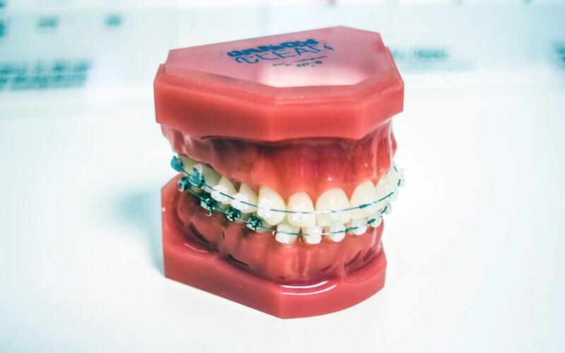 Studio Dentistico Oriolo | Dentista a Lido di Ostia | Ortodonzia