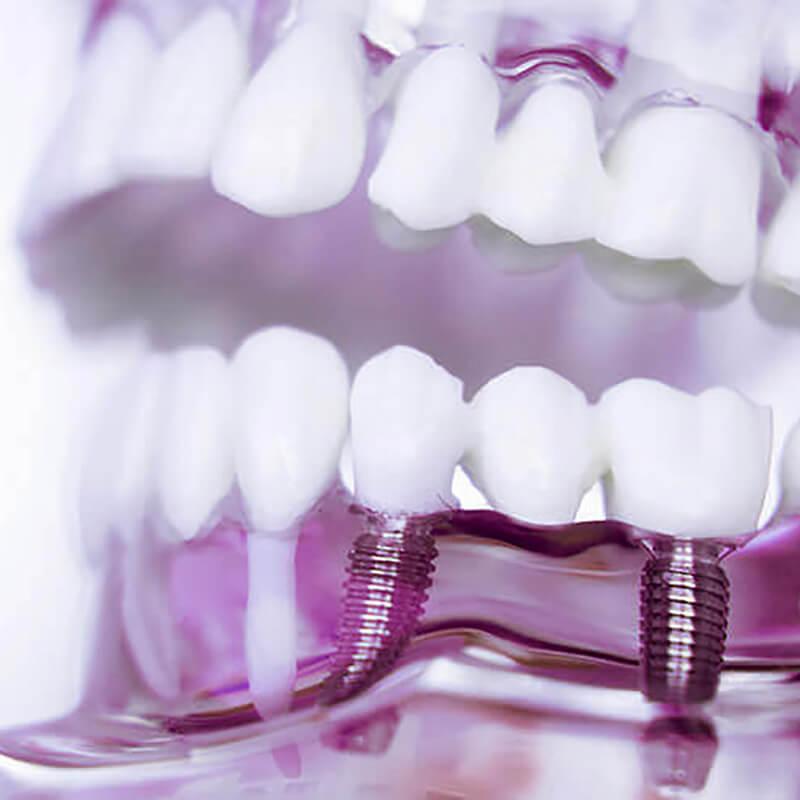 Studio Dentistico Oriolo | Dentista a Lido di Ostia | Implantologia Dentale