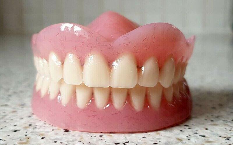 Studio Dentistico Oriolo | Dentista a Lido di Ostia | Protesi Dentale Totale Terza Età
