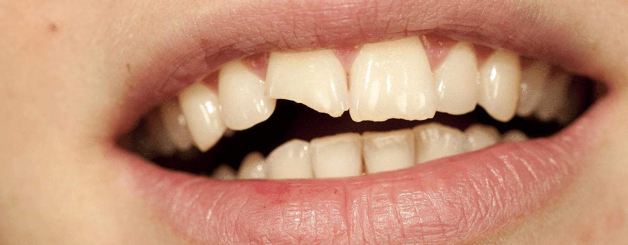 Studio Dentistico Oriolo | Dentista a Lido di Ostia | Terapia Dentale Conservativa - Ricostruzione Estetica
