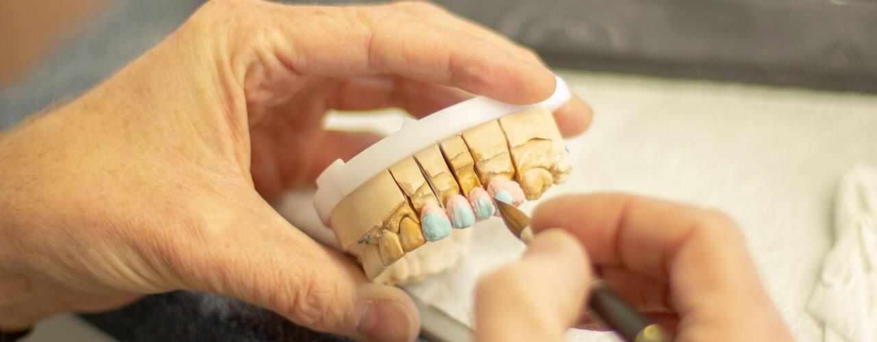 Studio Dentistico Oriolo | Dott.ssa Carmen oriolo Odontoiatra Lido di Ostia | Protesi Fissa