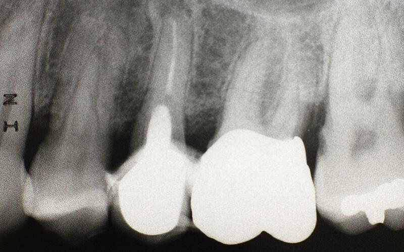 Studio Dentistico Oriolo | Dott.ssa Carmen oriolo Odontoiatra Lido di Ostia | Radiografia Endorale