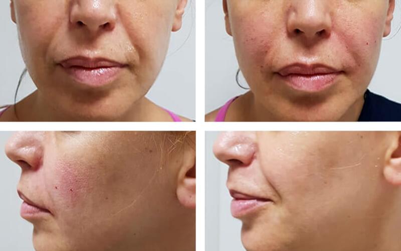 Studio Dentistico Oriolo | Dott.ssa Carmen oriolo Odontoiatra Lido di Ostia | Trattamenti filler rughe anti-aging