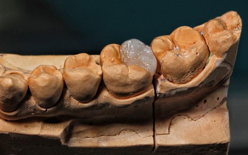 Studio Dentistico Oriolo | Dott.ssa Carmen oriolo Odontoiatra Lido di Ostia | Otturazioni Dentali