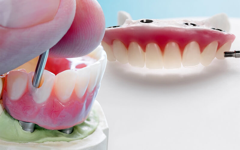 Studio Dentistico Oriolo | Trattamenti Interventi Dentali Protesi Carico Immediato