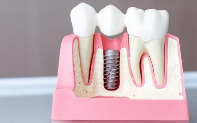 Impianti Dentali: Tutte le Domande e le Risposte