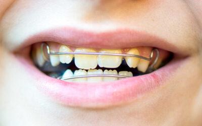 Ortodonzia: Tutte le Domande sulla Terapia Ortodontica