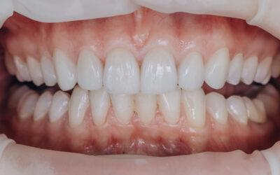 Faccette Dentali Estetiche: Come Avere Un Sorriso Perfetto
