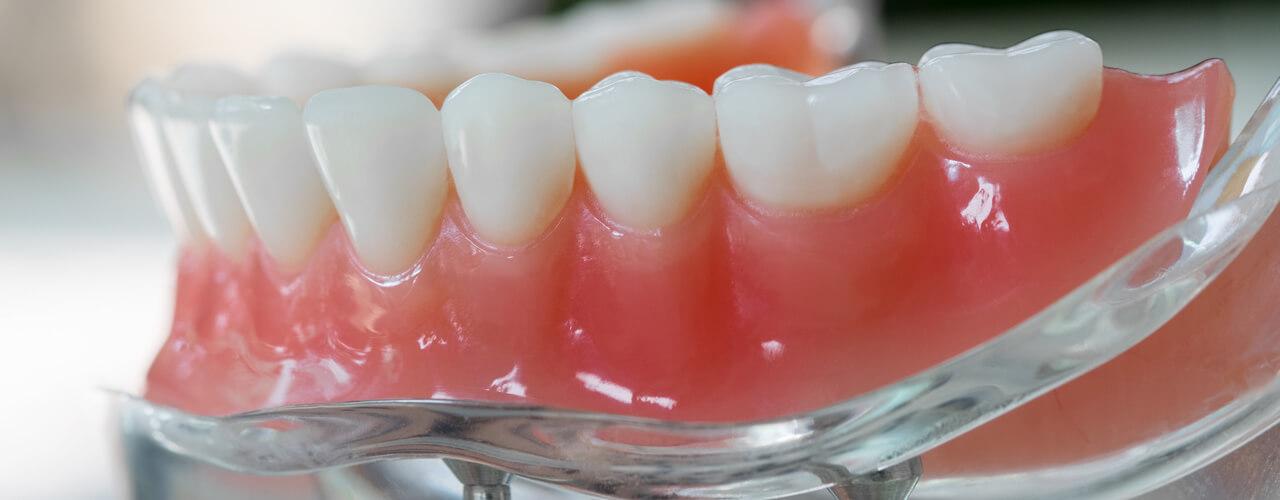 Studio Dentistico Oriolo | Ostia Lido | Protesi Fissa Su Impianti Toronto Bridge