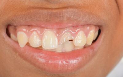 Infortunio dentale: Cosa Fare