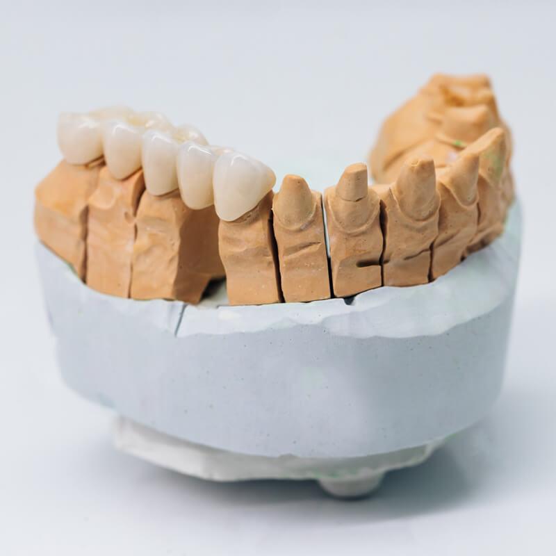 Studio Dentistico Oriolo | Ostia Lido | Protesi Fissa | Ceramica Metal Free