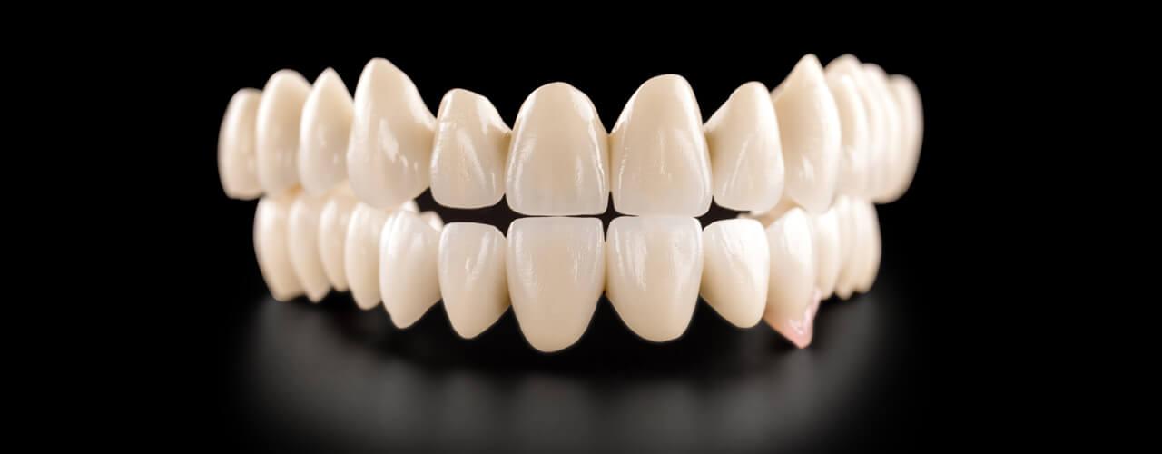 Studio Dentistico Oriolo | Ostia Lido | Protesi Fissa | Arcata Fissa