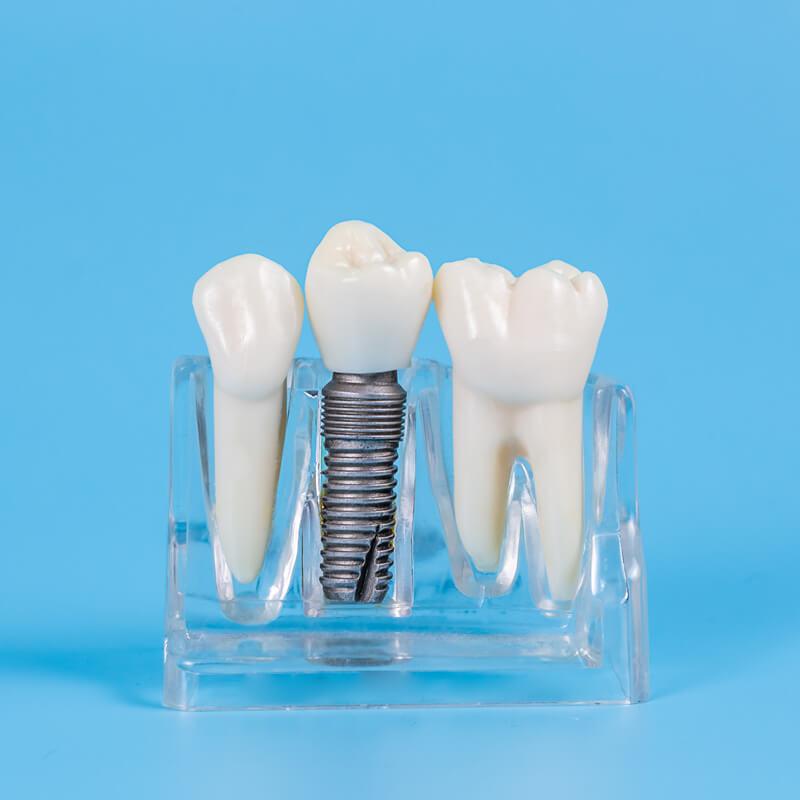Studio Dentistico Oriolo | Ostia Lido | Protesi Fissa | Corona Su Impianto