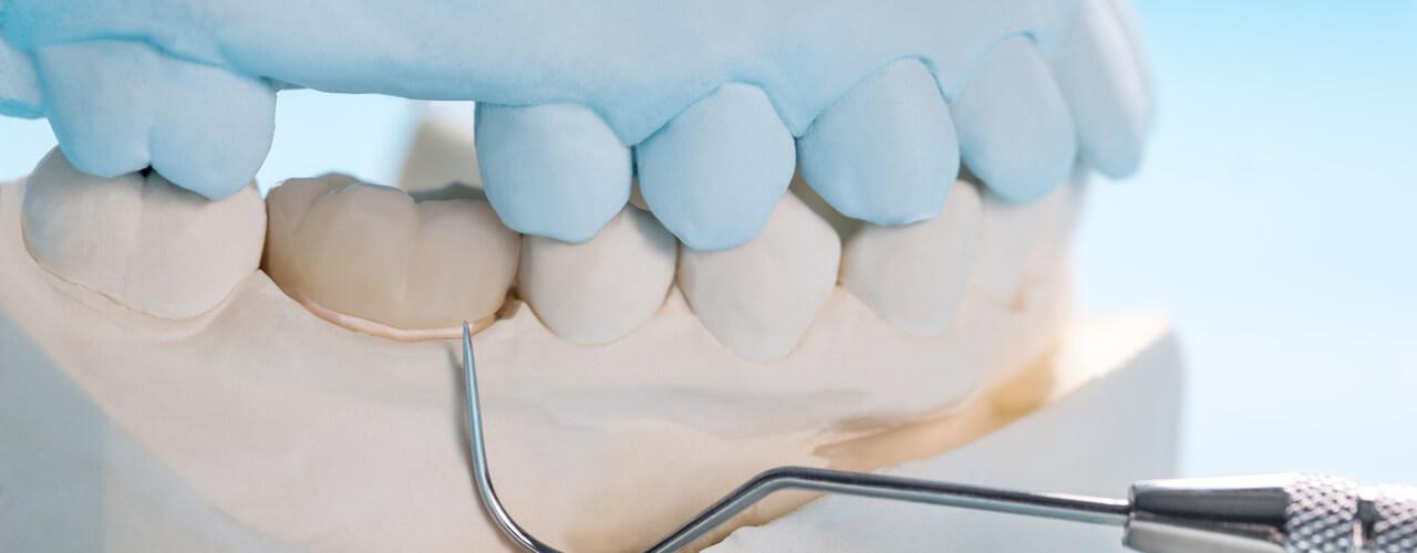 Studio Dentistico Oriolo | Ostia Lido | Protesi Fissa | Corona Dente Mancante