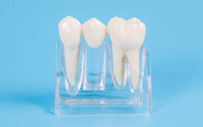 Protesi fissa: Le Corone e i Ponti Dentali
