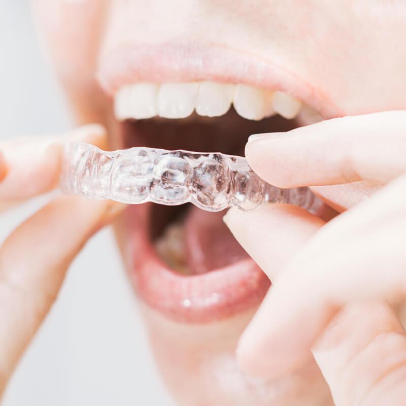 Studio Dentistico Oriolo   Ostia Lido   Ortodonzia Invisibile Invisalign   Adulti