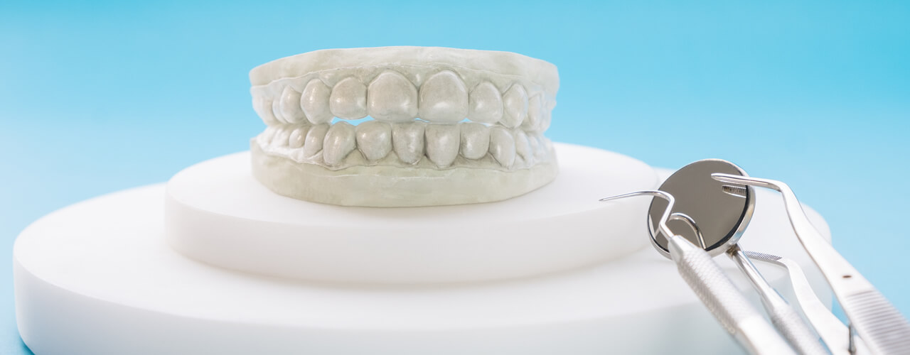 Studio Dentistico Oriolo   Ostia Lido   Ortodonzia Invisibile Invisalign   Aligner Modello