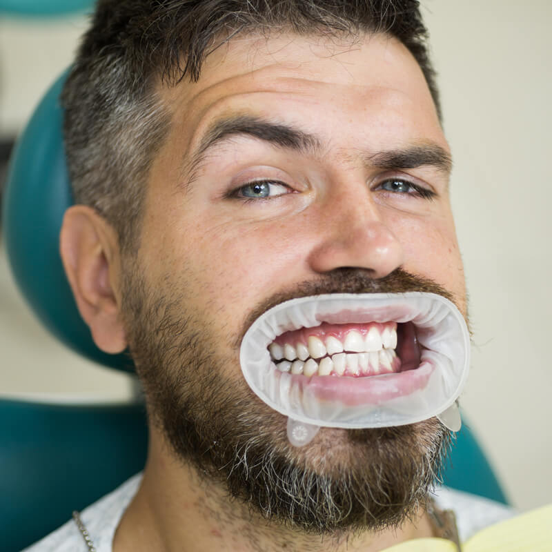 Studio Dentistico Oriolo   Ostia Lido   Ortodonzia Invisibile Invisalign   Ortodonzia Adulti